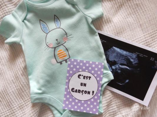 Retour sur le deuxième trimestre de grossesse
